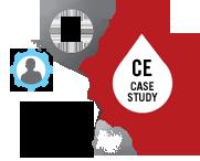 case study hemophilia childhood obesity